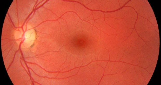 Fundus photograph of normal left eye